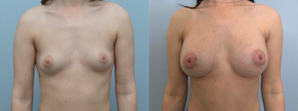 Breast Augmentation Gallery - Patient 48813693 - Image 1