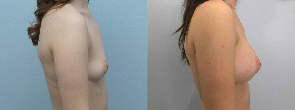Breast Augmentation Gallery - Patient 48813693 - Image 2