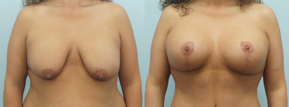 Breast Lift With Implants Gallery - Patient 48813695 - Image 1