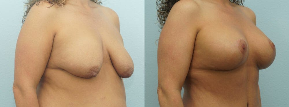 Breast Lift With Implants Gallery - Patient 48813695 - Image 2