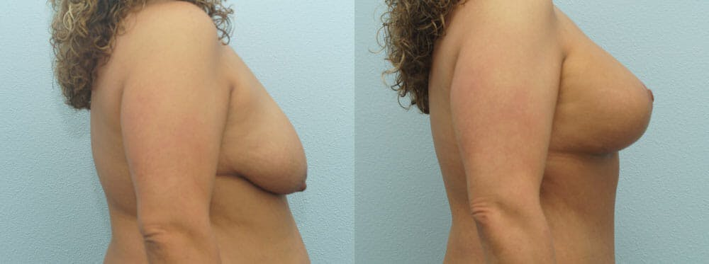 Breast Lift With Implants Gallery - Patient 48813695 - Image 3