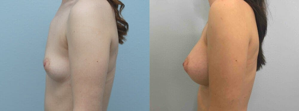 Breast Augmentation Gallery - Patient 48813693 - Image 4