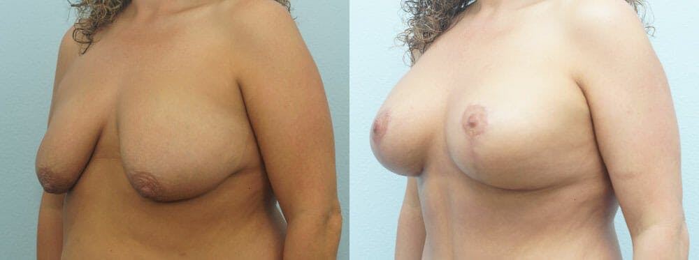 Breast Lift With Implants Gallery - Patient 48813695 - Image 4