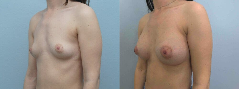 Breast Augmentation Gallery - Patient 48813693 - Image 5
