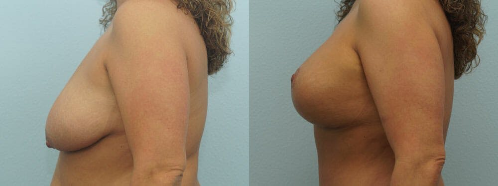 Breast Lift With Implants Gallery - Patient 48813695 - Image 5