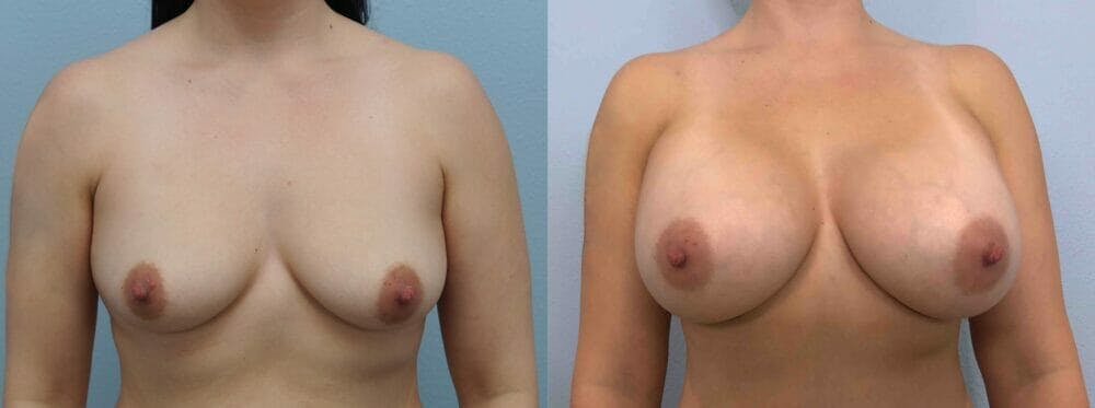 Breast Augmentation Gallery - Patient 48813699 - Image 1