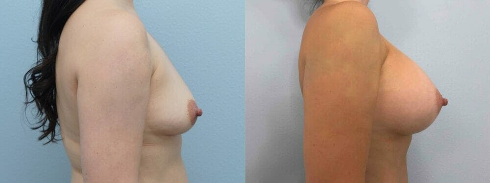 Breast Augmentation Gallery - Patient 48813699 - Image 2