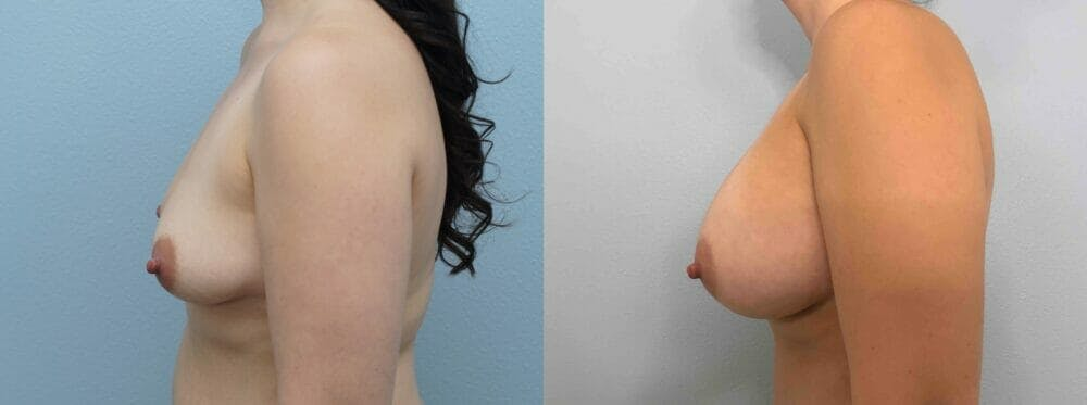 Breast Augmentation Gallery - Patient 48813699 - Image 3