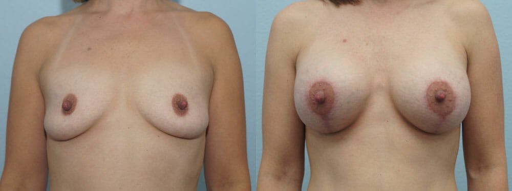 Breast Lift With Implants Gallery - Patient 48813702 - Image 1