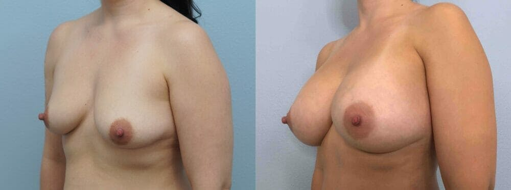 Breast Augmentation Gallery - Patient 48813699 - Image 4