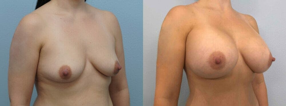 Breast Augmentation Gallery - Patient 48813699 - Image 5
