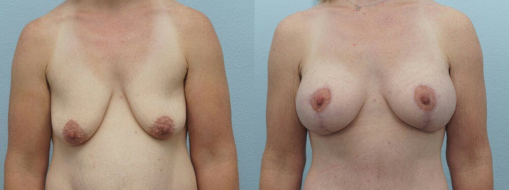 Breast Lift With Implants Gallery - Patient 48813711 - Image 1