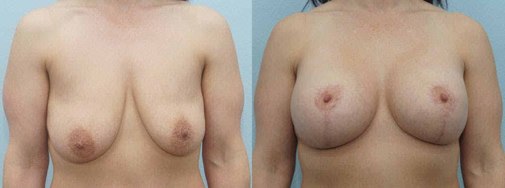 Breast Lift With Implants Gallery - Patient 48813721 - Image 1