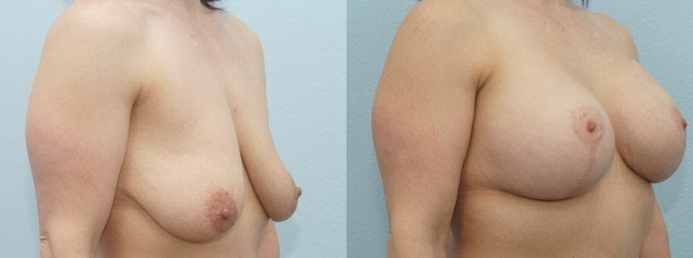Breast Lift With Implants Gallery - Patient 48813721 - Image 2