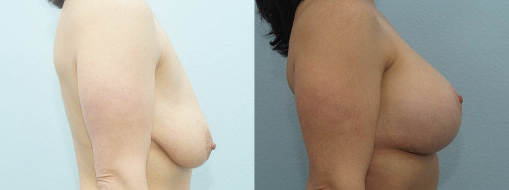Breast Lift With Implants Gallery - Patient 48813721 - Image 3