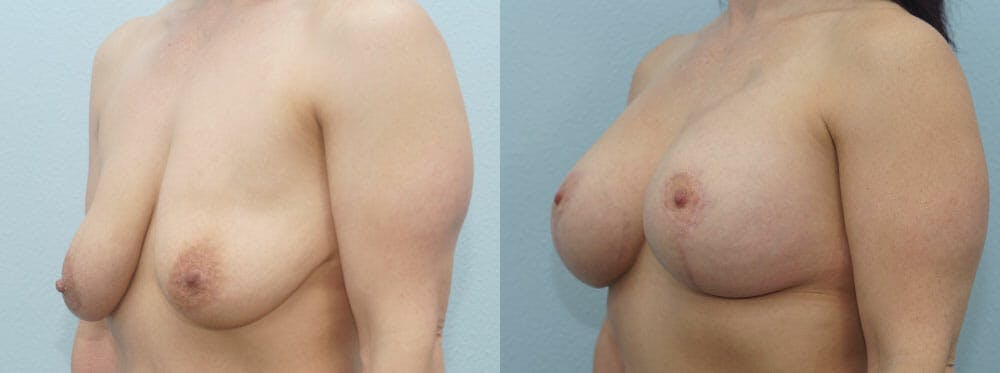 Breast Lift With Implants Gallery - Patient 48813721 - Image 4