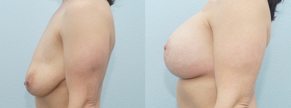 Breast Lift With Implants Gallery - Patient 48813721 - Image 5