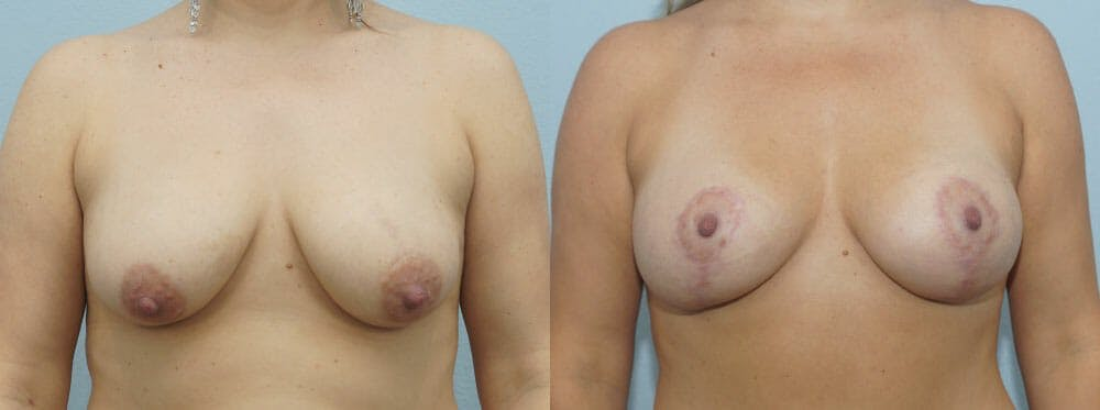 Breast Lift With Implants Gallery - Patient 48813728 - Image 1