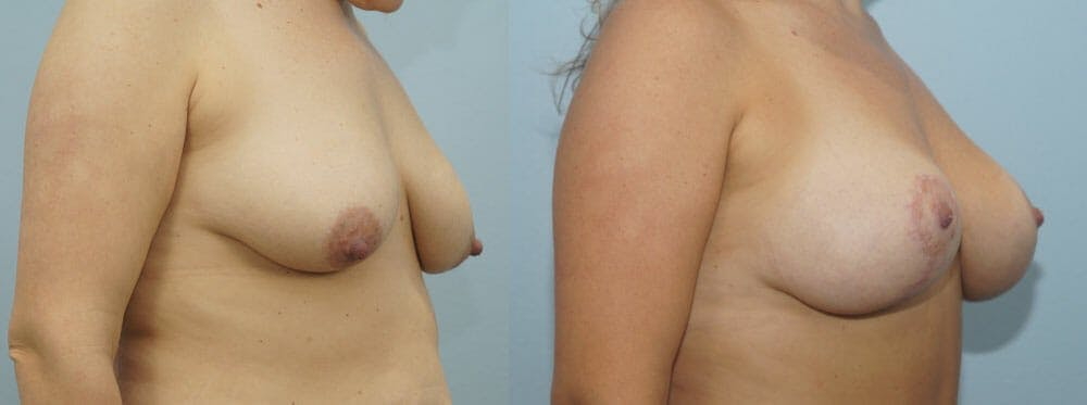 Breast Lift With Implants Gallery - Patient 48813728 - Image 2
