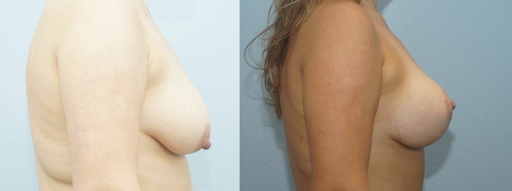 Breast Lift With Implants Gallery - Patient 48813728 - Image 3