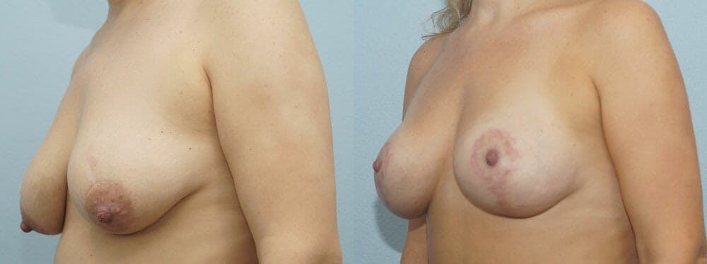 Breast Lift With Implants Gallery - Patient 48813728 - Image 4