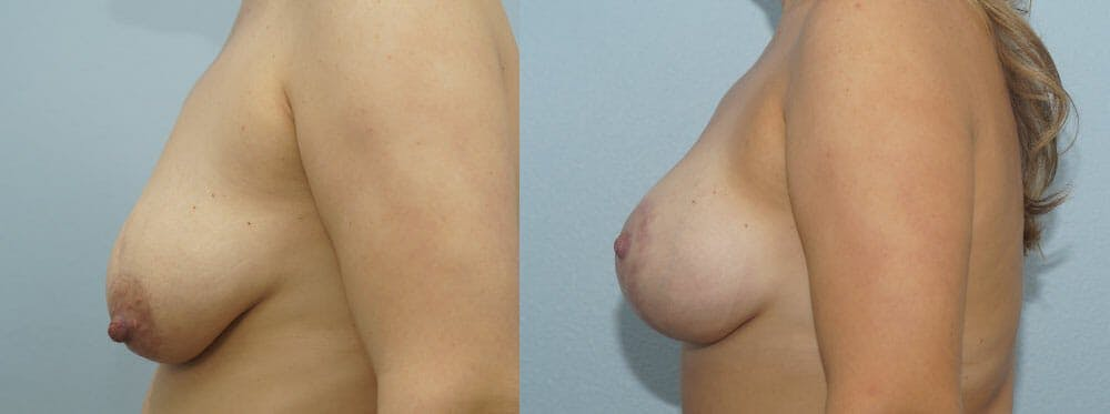 Breast Lift With Implants Gallery - Patient 48813728 - Image 5