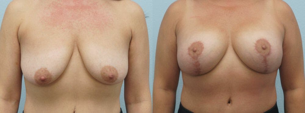 Breast Lift With Implants Gallery - Patient 48813750 - Image 1