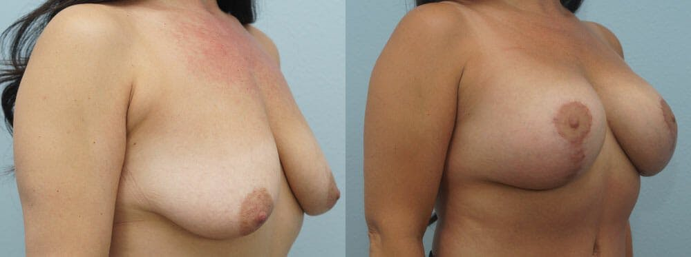 Breast Lift With Implants Gallery - Patient 48813750 - Image 2