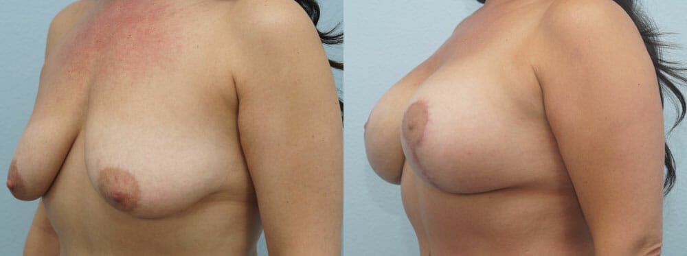Breast Lift With Implants Gallery - Patient 48813750 - Image 4