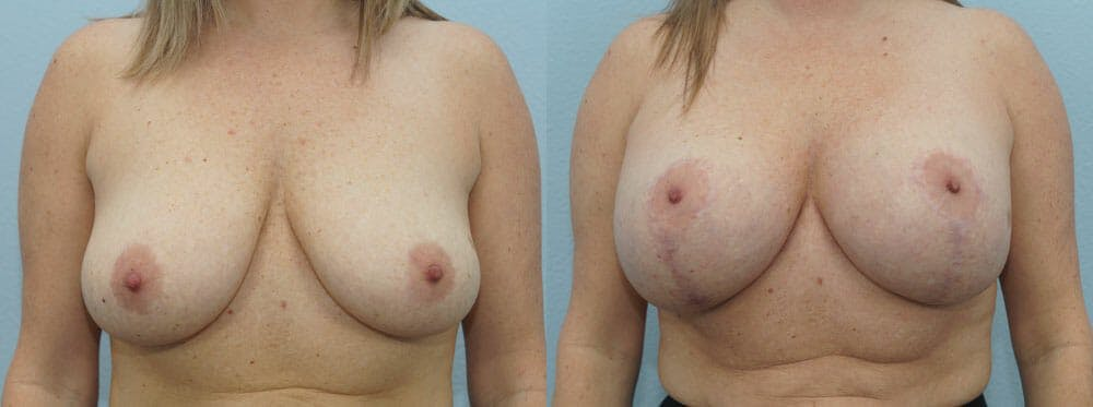 Breast Lift With Implants Gallery - Patient 48813792 - Image 1