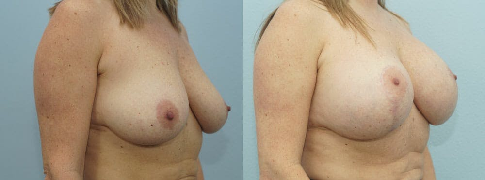 Breast Lift With Implants Gallery - Patient 48813792 - Image 2
