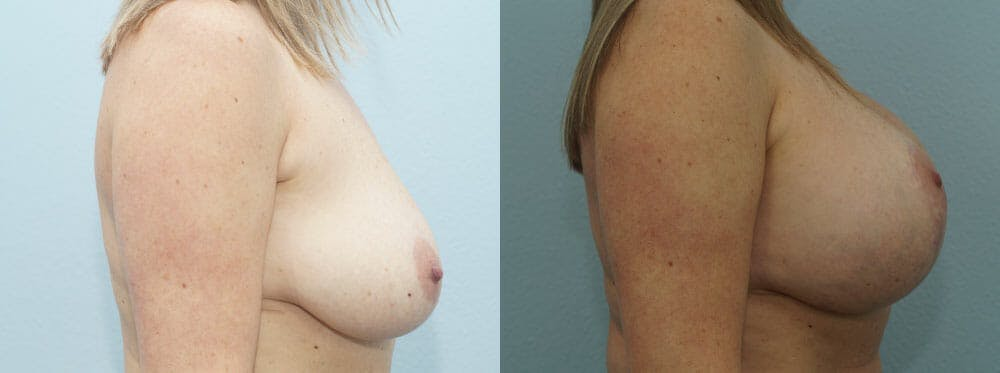Breast Lift With Implants Gallery - Patient 48813792 - Image 3