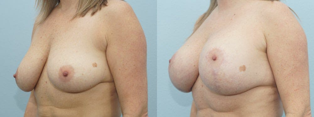 Breast Lift With Implants Gallery - Patient 48813792 - Image 4