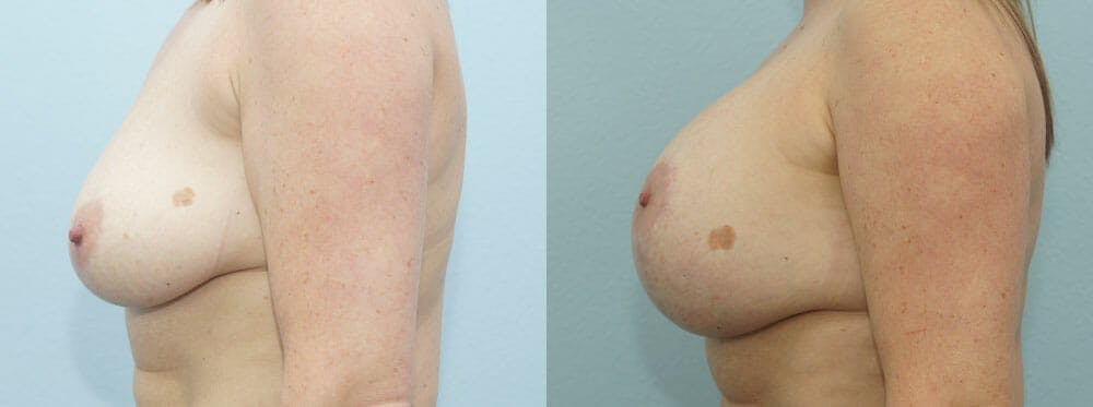 Breast Lift With Implants Gallery - Patient 48813792 - Image 5