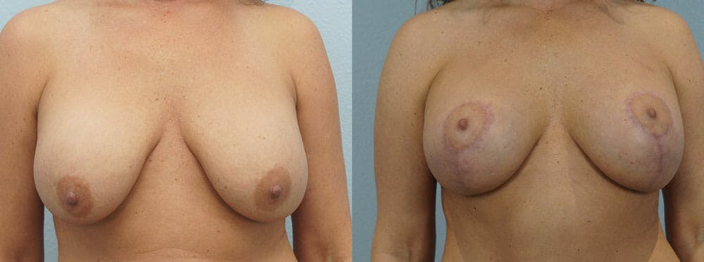 Breast Lift With Implants Gallery - Patient 48813837 - Image 1
