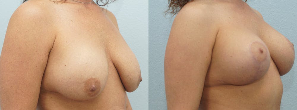 Breast Lift With Implants Gallery - Patient 48813837 - Image 2