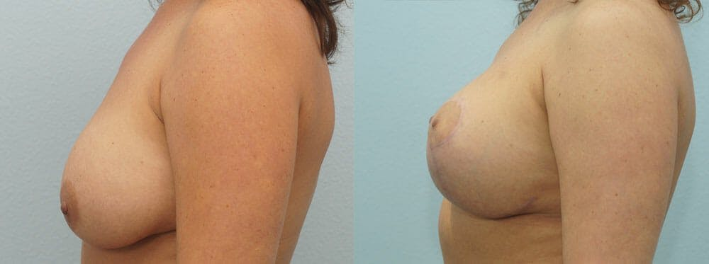 Breast Lift With Implants Gallery - Patient 48813837 - Image 3