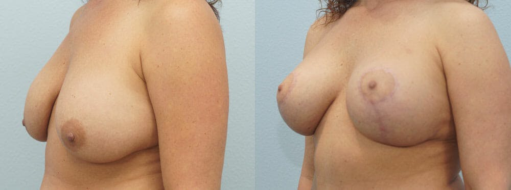 Breast Lift With Implants Gallery - Patient 48813837 - Image 4