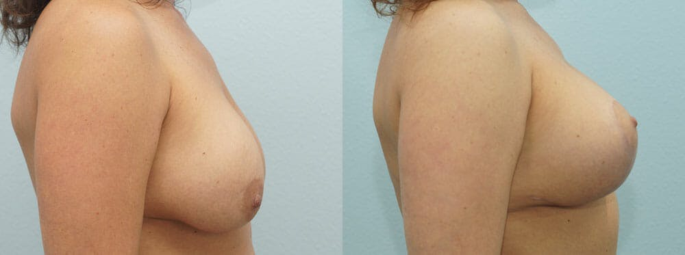 Breast Lift With Implants Gallery - Patient 48813837 - Image 5