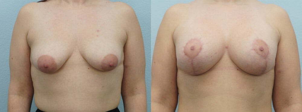 Breast Lift With Implants Gallery - Patient 48813868 - Image 1