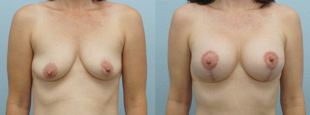 Breast Lift With Implants Gallery - Patient 48813912 - Image 1