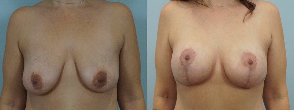 Breast Lift With Implants Gallery - Patient 48813938 - Image 1