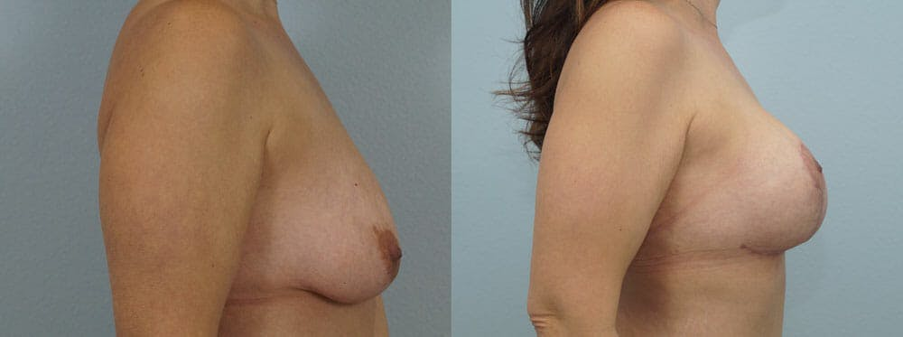 Breast Lift With Implants Gallery - Patient 48813938 - Image 2