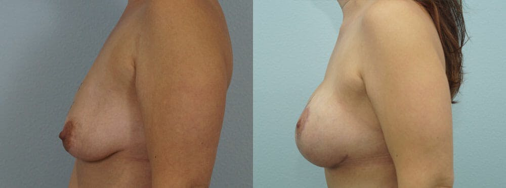 Breast Lift With Implants Gallery - Patient 48813938 - Image 3