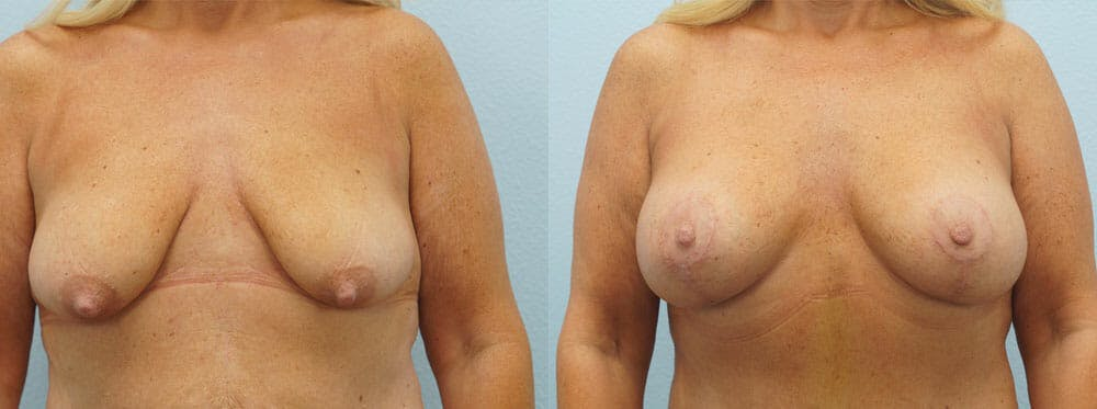 Breast Lift With Implants Gallery - Patient 48813942 - Image 1