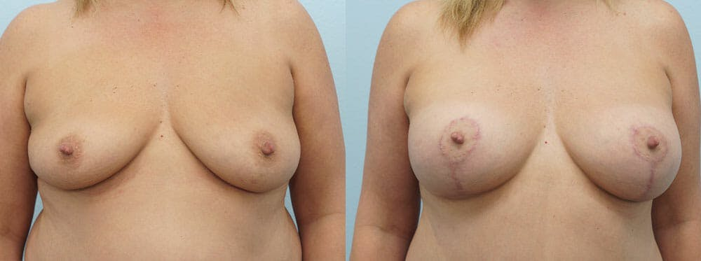 Breast Lift With Implants Gallery - Patient 48813946 - Image 1