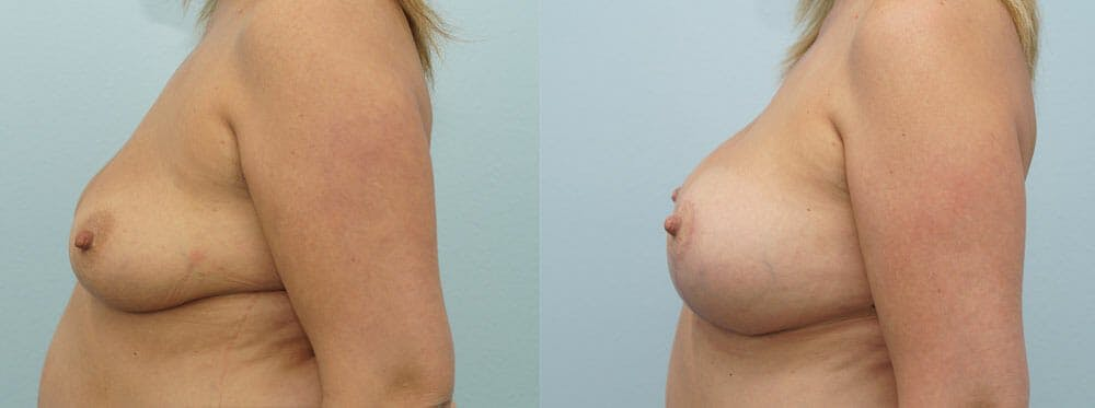 Breast Lift With Implants Gallery - Patient 48813946 - Image 2