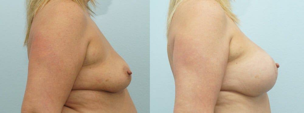 Breast Lift With Implants Gallery - Patient 48813946 - Image 3