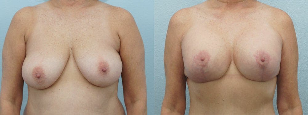 Breast Lift With Implants Gallery - Patient 48813952 - Image 1