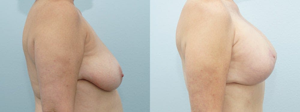 Breast Lift With Implants Gallery - Patient 48813952 - Image 2